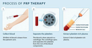 improve female libido prp therapy auckland